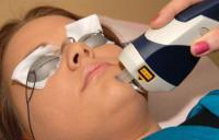 женщине проводят процедуру чистки лица