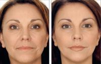 лицо женщины до и после процедуры лазерной биоревитализации